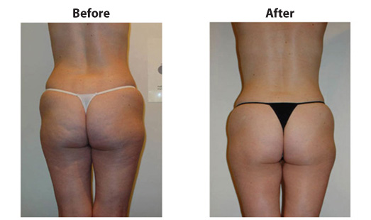 cellulite-treatment-lymphatic-drainage